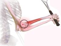 BLESSURE: Wat te doen bij epicondylitis of tenniselleboog?