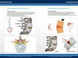 STEP Brochure: PDA - Rugklachten door bukken, tillen en zitten_